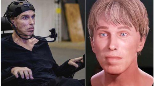 Перший у світі кіборг хоче стати роботом для боротьби зі своєю хворобою